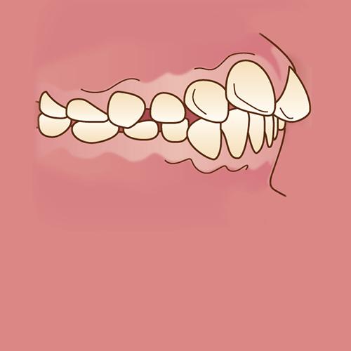 出っ歯(上顎前突)イラスト図