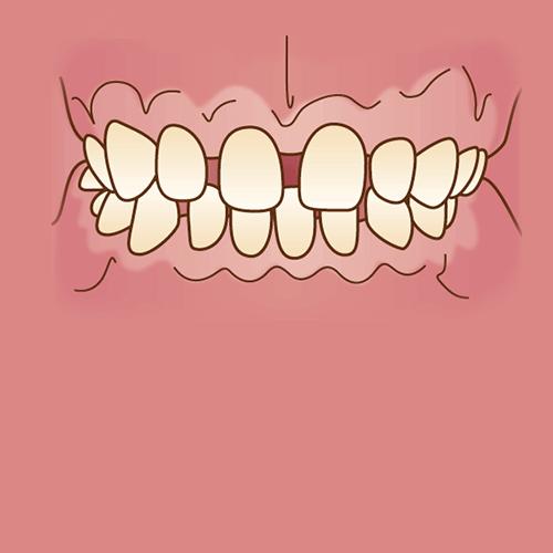 すきっ歯(空隙歯列)イラスト図