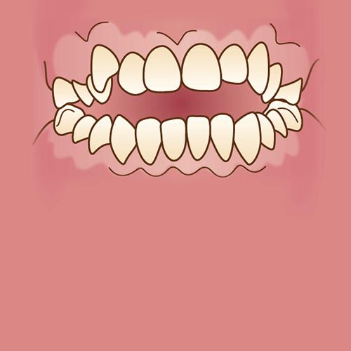 前歯で噛めない(開咬)イラスト図