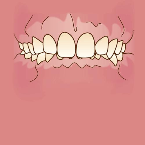 噛み合わせが深い(過蓋咬合)イラスト図