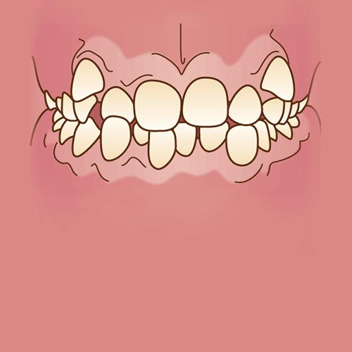 デコボコな歯列(叢生)イラスト図